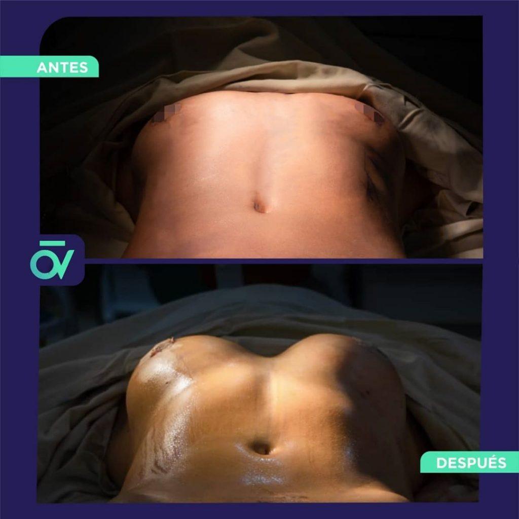 Lipo360 y Aumento mamario