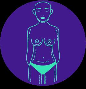 Liposucción corporal - ov cirujanos plásticos, loja